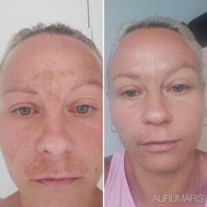 efekty-aurumaris-przebarwienia-1