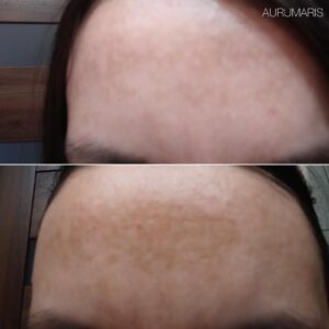 efekty-aurumaris-przebarwienia-2